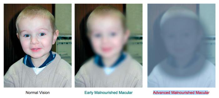 Malnourished Macular